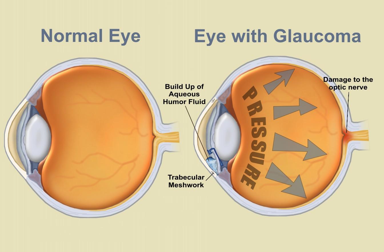 glaucoma testing pic